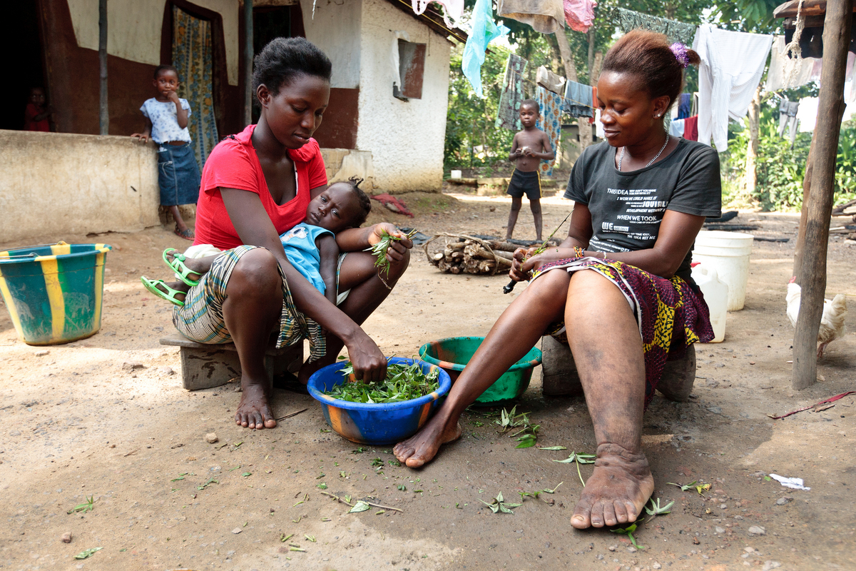Lymphatic Filariasis or Elephantiasis symptom