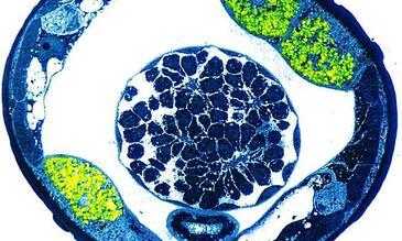 Cross section filarial nematode wolbachia in green